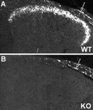 NPY Y2 receptor immunoreactivity in mouse dorsal root ganglion of wild type
