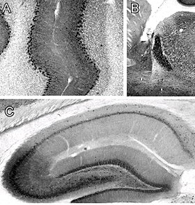 TRPC5 staining of cerebellar (A), reticular thalamic nucleus (B) and .hippocampal (C) tissue.