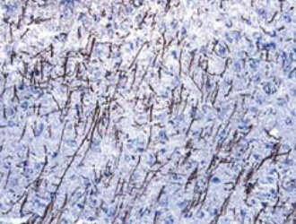 MOG staining of  cryostat section of mouse cortex. Tissue was stained using the anti-goat HRP-DAB (brown) and counterstained with hematoxylin (blue).