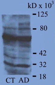 Western blot of aged control and Alzheimer brain homogenates using a 1:3,000 dilution of 4-HNE antibody.