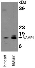 Detection of VAMP-1. Tissue lysates were resolved by SDS-PAGE, transferred to an Immobilon-P membrane and immunoblotted with 1.0 μg/mL VAMP-1.