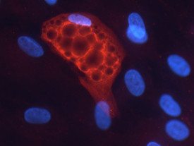 ADPN satining of human adipocytes (dilution:10 µg/mL). Cells were stained using 557 donkey anti-sheep IgG secondary antibody (red) and counterstained with DAPI (blue).