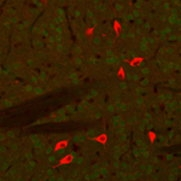 A tissue section through an adult mouse brain showing ChAT (red staining) in cholinergic neurons of the caudate-putamen nucleus.