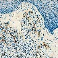 CD34 staining of human tonsil tissue. Note intense staining of neoplastic endothelial cells and absence of staining of stromal cells. Paraffin section