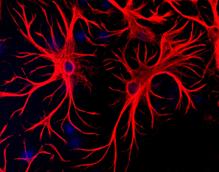 GFAP (red) staining of astrocytes in primary culture (DAPI, blue).