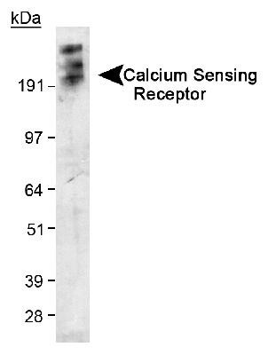 Western Blot of Calcium Sensing Receptor in transfected 293 cell lysate. ECL exposure, 5 minutes. In this photo, the protein has aggregated and thus the higher MW band as expected.
