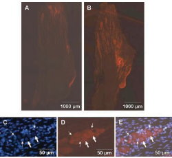 Expression of S100B in trigeminal ganglion neurons is increased in response to capsaicin. A section of a ganglion from untreated animals or animals injected with capsaicin stained for S100B is shown