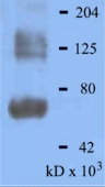 Western blot of Dinitrophenol (DNP) detection in Alzheimer's brain with DNP antibody at 1:2,000 dilution