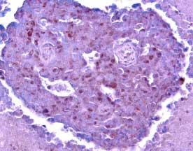 Bcl-2 staining of  human breast cancer tissue. Cells were stained using ABC-HRP + NovaRed (red) substrate and Haematoxylin (blue) counterstain. . Nakopoulou, L. et al., Histopathology, 1999, 34(4):310-319.