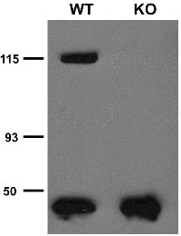 Immunoprecipitation analysis of TRPC5 protein in brain microsomes extracted from wild-type (WT) and TRPC5 knockout (KO) littermates. Courtesy of Dr. David Clapham (HHMI/Harvard Medical School).