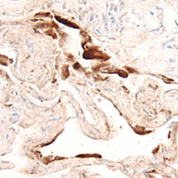 BMP-6 staining paraffin-embedded human lung tissue. HRP-DAB reagents (brown color) were used for the detection. Tissue sections were counterstained using hematoxylin (blue).