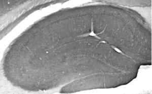 Cav1.3 Ca2+ channel staining of adult rat hippocampus.