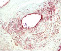 Tie-2 Staining in Paraffin-embedded tissue sections of human placenta (cross-section through the blood vessel) were stained with anti-goat HRP-AEC (red) and Haematoxylin (blue) counterstain.