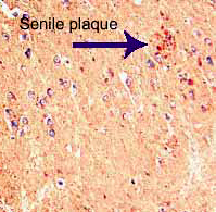 Paraffin-embedded tissue sections of human hippocampus (Alzheimers). MIP-1 alpha immunoreactivity is shown in red and Haematoxylin counterstain in blue.