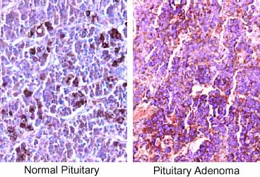 Paraffin-embedded tissue sections of human pituitary were stained with anti-human TGF-beta RII using ABC-HRP, NovaRed (red) substrate and Haematoxylin (blue) counterstain.