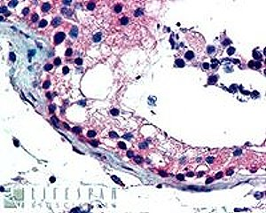 FOXE1 (dilution:  2.5µg/ml) staining of paraffin embedded Human Testis. Steamed antigen retrieval with citrate buffer pH 6, AP-staining. Protocol on Data-sheet.