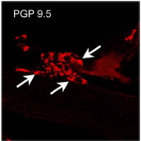 PGP9.5 immunoreactivity in the cytoplasm of neuronal cell bodies in tracheal ganglion. British Journal of Pharmacology (2007) 150, 220–226. doi:10.1038.