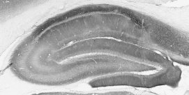 mGluR1/5 staining of adult rat hippocampus.