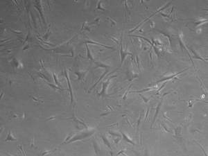 Human CAFS-Pancreatic Stellates cultured in MSCGro  supplemented with Neuromics FBS - Fetal Bovine Serum. Courtesy of Emily Rodela, TGEN.