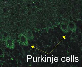 P2x2 staining of Cerebellar Purjinke cell layer. ~50 μm sections from 3 brains from P15 rats.