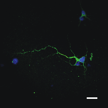 Embryonic day-18 primary rat hippocampal cells (PC 35101) grown over pLL-coated 6-well plate for 48 hours. Green: anti-rat TAU/MAPT (CH22113), blue: DAPI. Scale bar = 25 um.