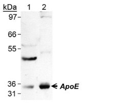 Detection of ApoE in human tissue lysate using NB110-60531.
