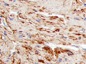 Cathepsin F staining of paraffin-embedded human heart tissue sections.  Tissues were stained using  anti-mouse HRP-DAB Cell and Tissue Staining Kit and counterstained with hematoxylin (blue).
