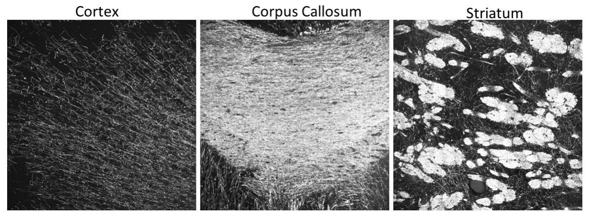 Staining in mouse cortex, corpus callosum, and striatum