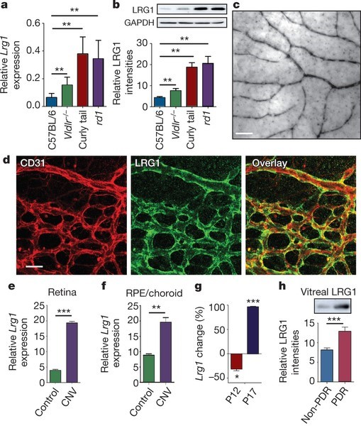 3D Human Retinal Microvascular Angiogenesis group of photos