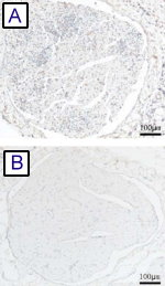MMP-9 expression in the sciatic nerves of control (A) vs AUY954 (B) treated rats.