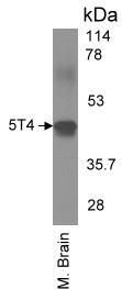 Detection of 5T4 by western blot.Mouse brain lysates were resolved by SDS-PAGE, transferred to an Immobilon-P membrane and immunoblotted with 1.0 μg/mL of antibody.