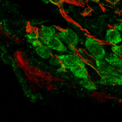 Adult mouse cochlear ganglion stained with mGluR2  (green) and Tuj-1 (red). Protocol on datasheet.