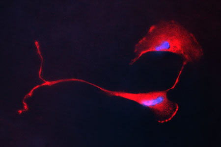 Schwann Cells stained with s100 antibody (red) and DAPI (blue).