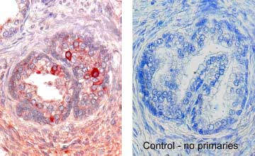 staining of Activin RIIA in human prostate cancer. Cells were stained with ABC-HRP + AEC (red) and Haematoxylin (blue) counterstain.