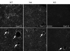 Cav1.2 Ca2+ channel staining of adult rat hippocampus