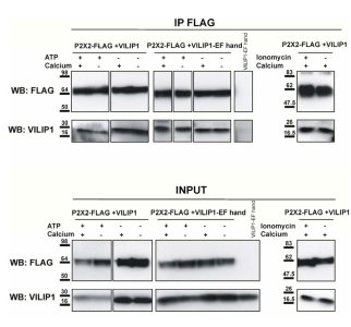 The constitutive interaction between P2X2 receptors and VILIP1 is calcium independent