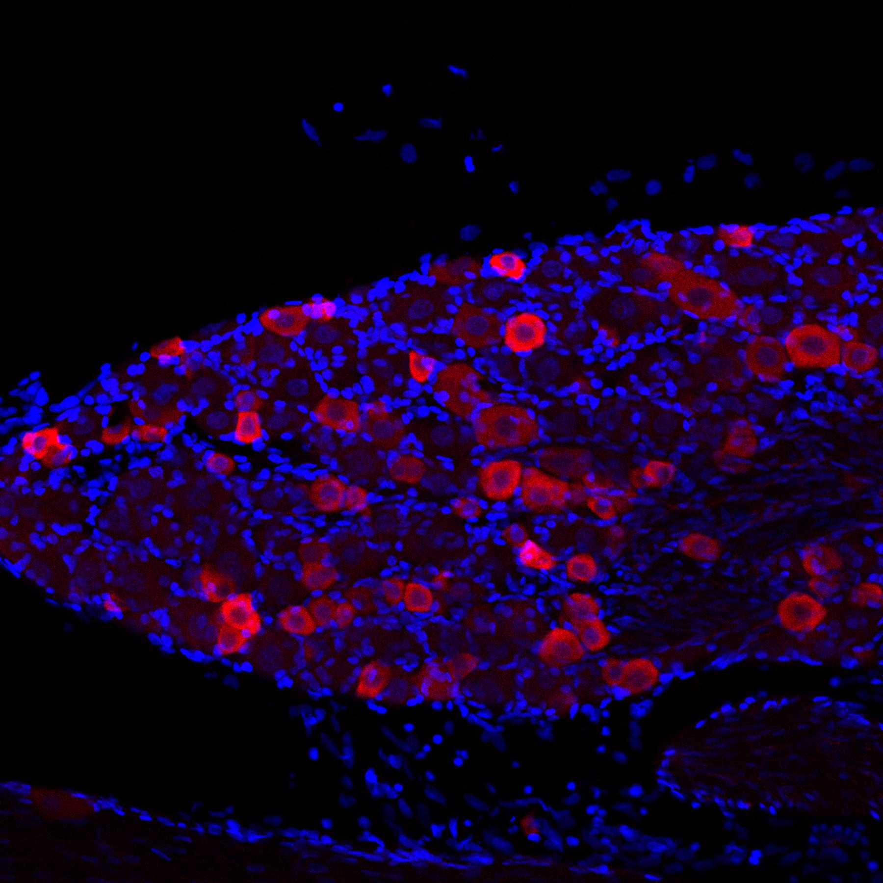 TRPV1 staining of mouse inferior olive using Cy3-conjugated donkey anti-rabbit secondary antibodies (red color) and DAPI (blue) as a nuclear counterstain.