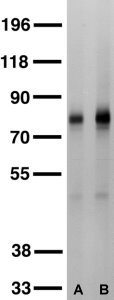 Kv4.2 western blots of membrane fractions of whole rat brain. (A) Dilution 1:100 (B) Dilution\.