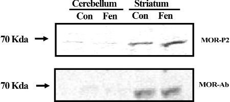 estern blots of isolated mouse brain striatum and cerebellum for the non-phospho-MOR antibody or the MOR-P2 antibody