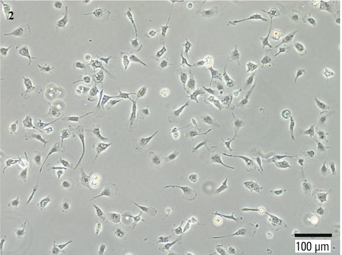 Immortalized Human Microglia in Contrast phase 100X.