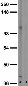 Image: Kv2.1 western blots of membrane fractions of whole rat brain. (A) Dilution 1:100 (B) Dilution 1:1,000. J Physiol 581.3 (2007) pp 941–960.