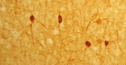 IHC image of neurons staining for the calbindin in the rat cortex.