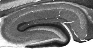 Kv1.2 staining of adult rat hippocampus.