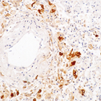 Calretinin staining of human mesotheliom. Note cytoplasmic staining of malignant cells. Paraffin section.
